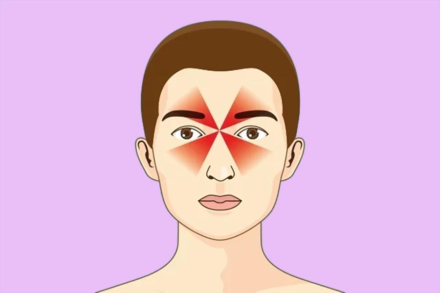 Headache associated with sinusitis
